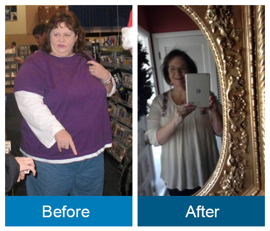 Before and after image: Judith Gonzalez