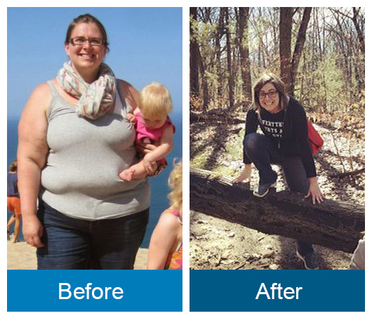 Before and after image: Theresa Buist